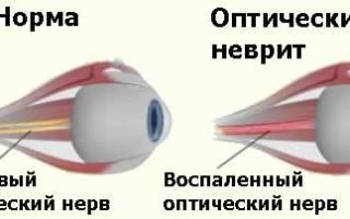 Слепота у кошек признаки и причины